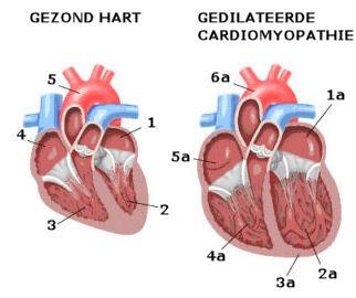 oorzaak hartruis